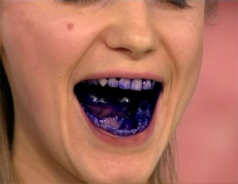 Бактерии во рту человека