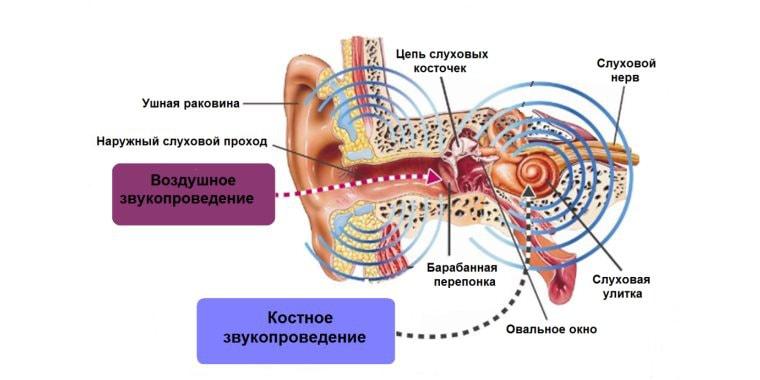 почему мы слышим звон в ушах