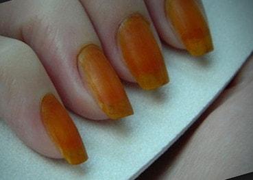 Если мазать ногти йодом, что будет?