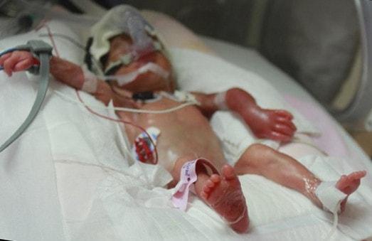 Самый маленький новорожденный ребенок в мире