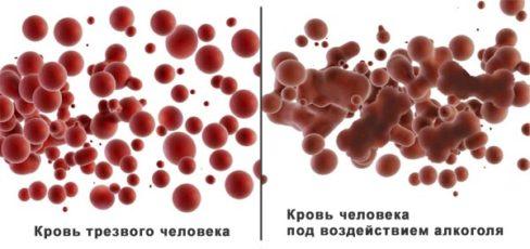 Склейка эритроцитов под действием алкоголя